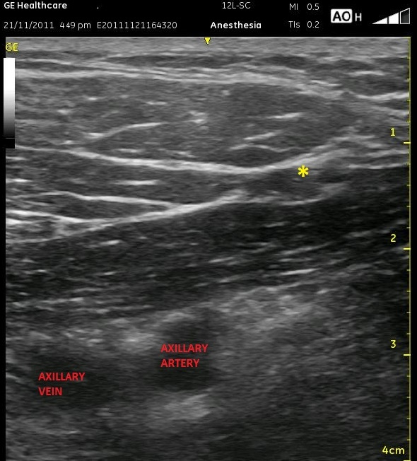 Infraclavicular labeled axillary vein