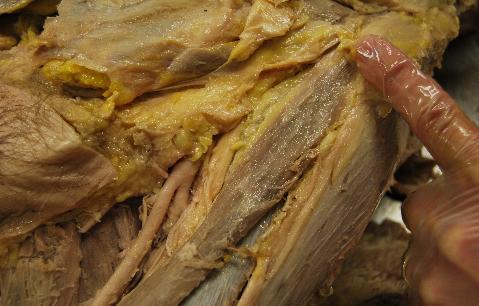 fascia iliaca, Muscles