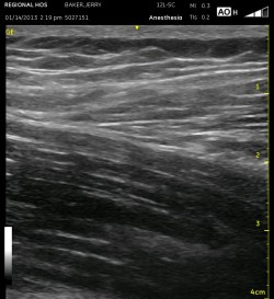 iliopsoas muscle w sartorius muscle above
